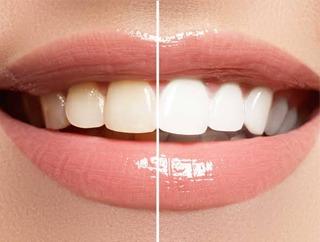 Contemporary Endodontics | Houston Endodontist | Internal Tooth Bleaching